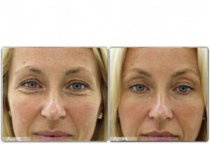 toxine botulique rides visage