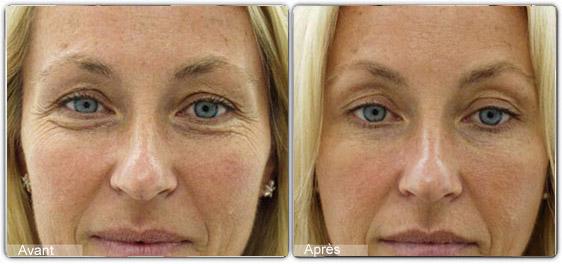 toxine botulique contour yeux