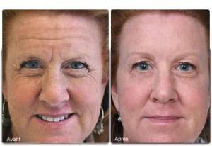 Botox rides visage
