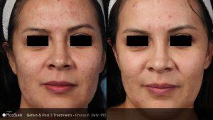 acné picosure