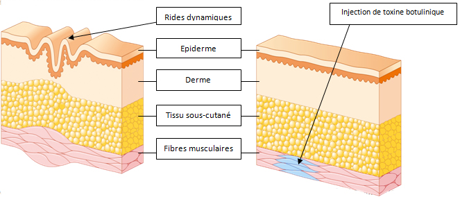 acide-hyaluronique-peau