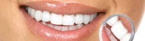 CSHP blanchiment des dents