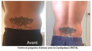 cryo-AvAp5