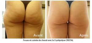 Cellulite des fesses - Avant / Après Cryolipolyse