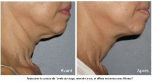 avant apres ultherapy