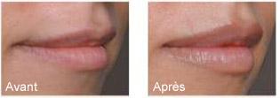Gonflement des lèvres
