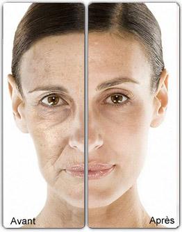 Mésothérapie du visage à Paris - CSHP