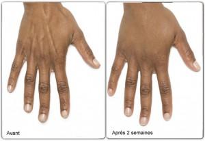 Radiesse pour les mains avant apres