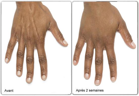 Radiesse pour les mains