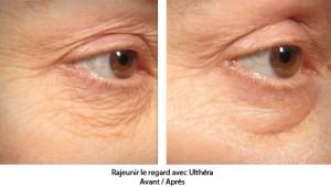 rajeunir-le-visage-san-chirurgie-centre-ultherapy-paris