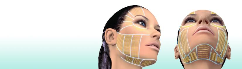Lifting visage sans chirurgie