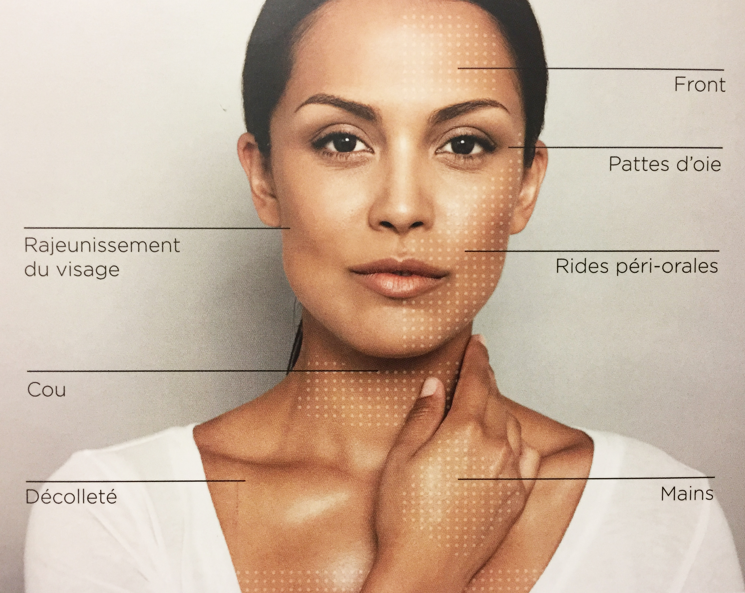 indications skinboosters