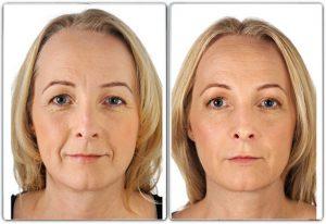 Avant-Après Restylane Skinboosters™