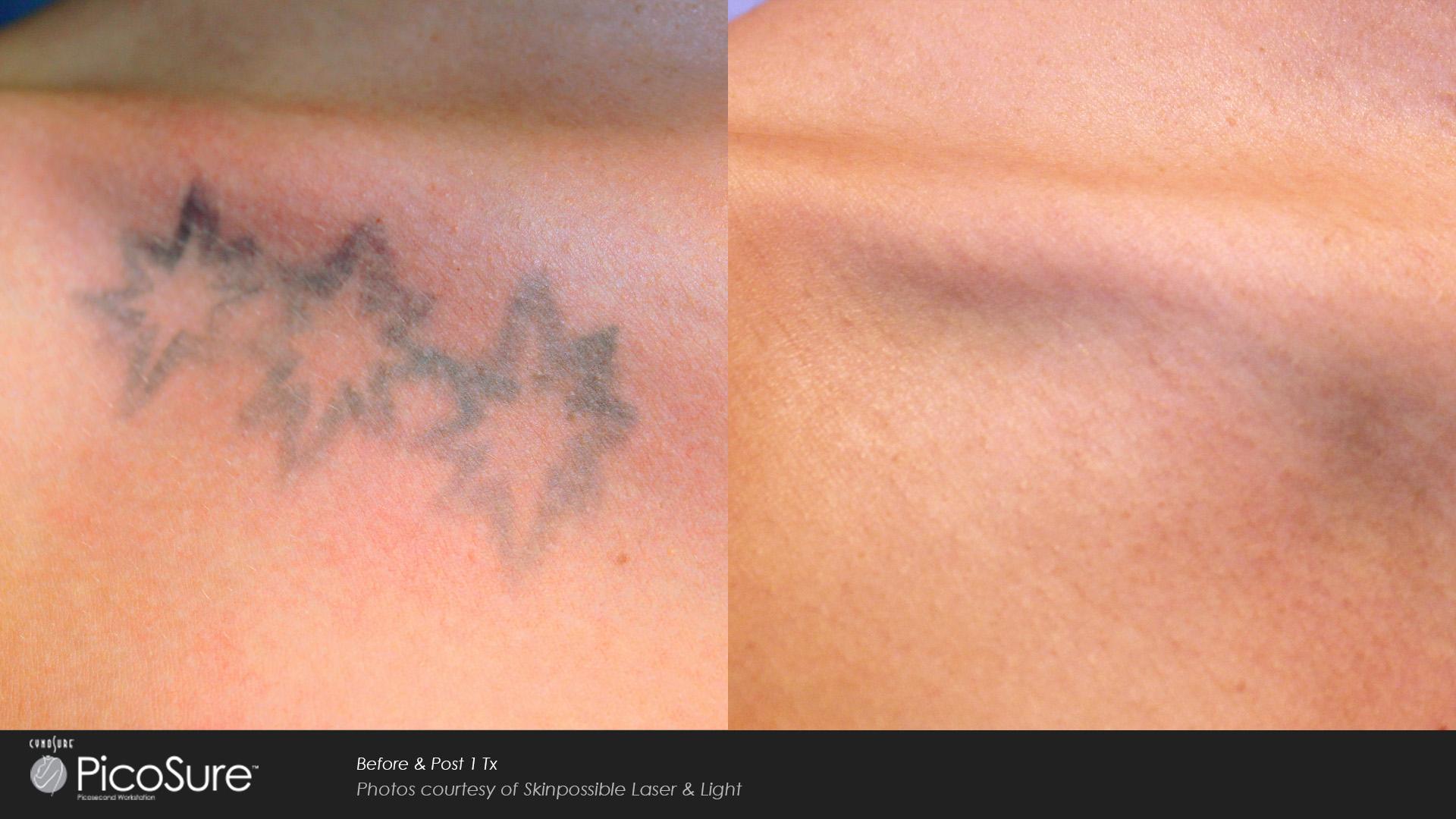 Detatouage Laser Comment Enlever Un Tatouage Cshp Paris