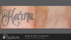 tn_ba_picosure_hall-plastic-surgery_post3tx_tattoo_web1