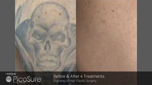 tn_ba_picosure_hall-plastic-surgery_post4tx_tattoo_web1