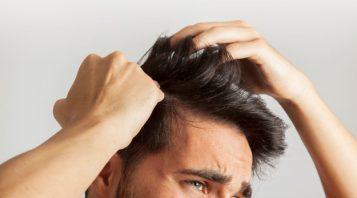 greffe cheveux homme