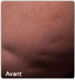 Avap1-cellfina-avant