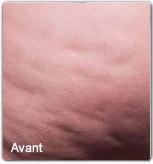 Avap2-cellfina-avant