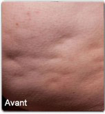 Avap3-cellfina-avant