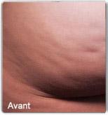 Avap5-cellfina-avant