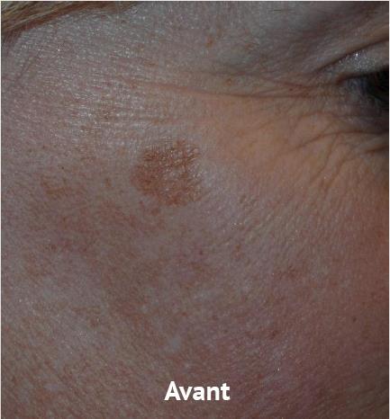 avant1-taches-picosure