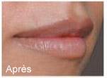 Gonflement des lèvres apres