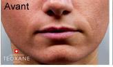Gonflement des lèvres avant
