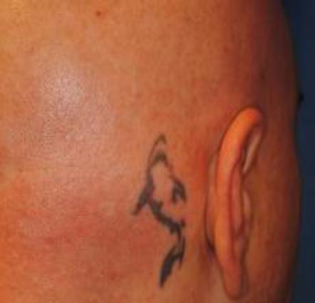 tatoo9-avant picosure