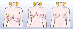shema reduction mammaire