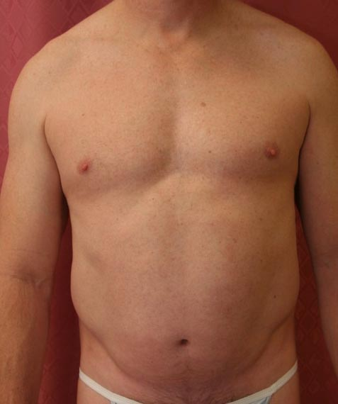 liposuccion avant apres