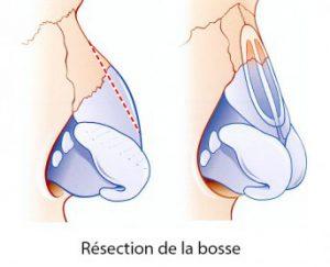 rhinoplastie-schema