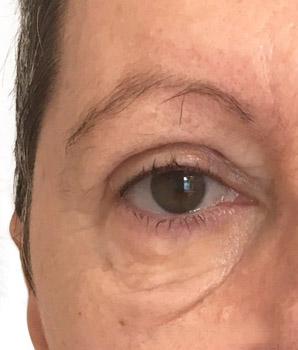 blepharoplastie apres