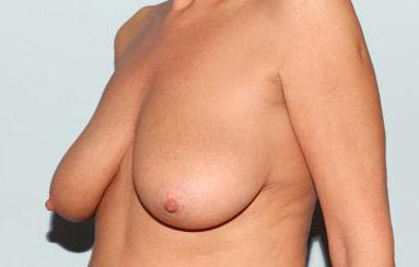 breast reduction avant apres