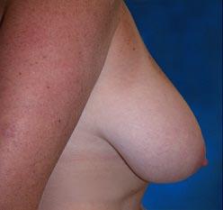 chirurgie mammaire avant apres