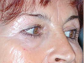 blepharoplastie avant