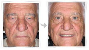 blepharoplastie avant apres
