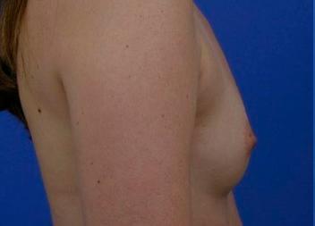 protheses mammaires avant apres