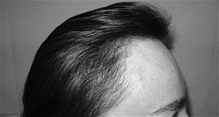 fue greffe cheveux avant apres